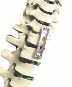 Apex Anterior Cervical Plate System